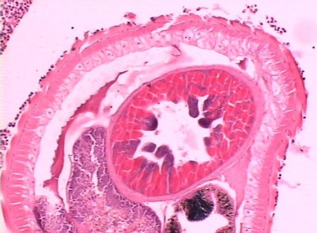 鞭虫卵手绘图相关位置